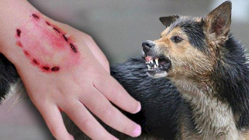 картинки укус собаки на руке телефон обосновался